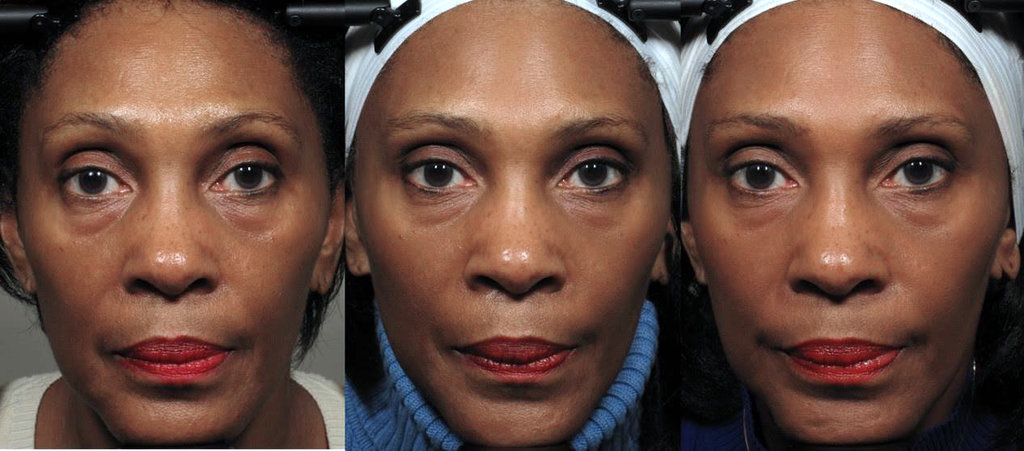 Facial exercises may significantly reduce some of the signs of aging